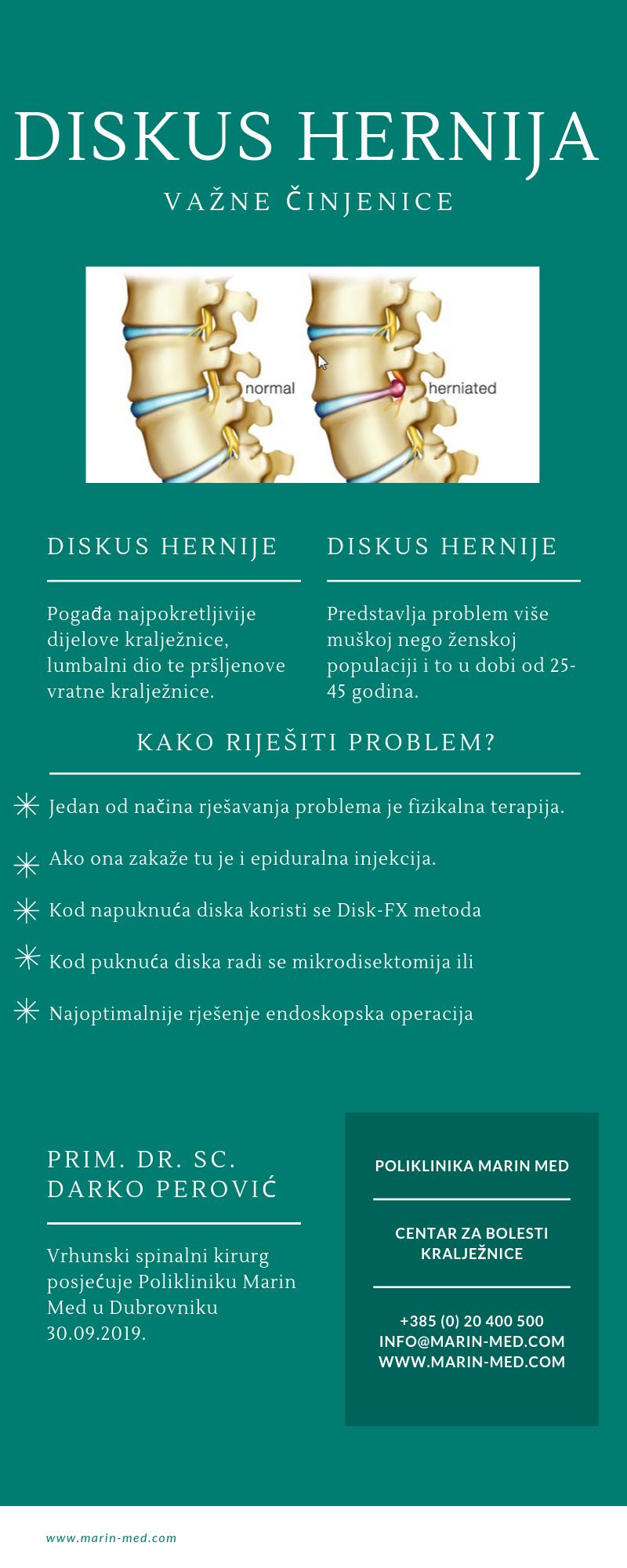 Disk hernije (Diskus hernije)