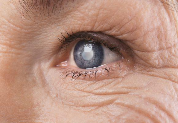 Operacija katarakta – sive mrene najmodernijom ultrazvučnom metodom